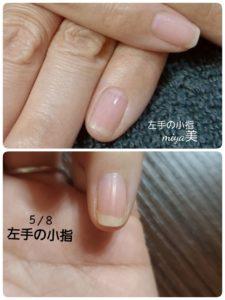 爪を比べる